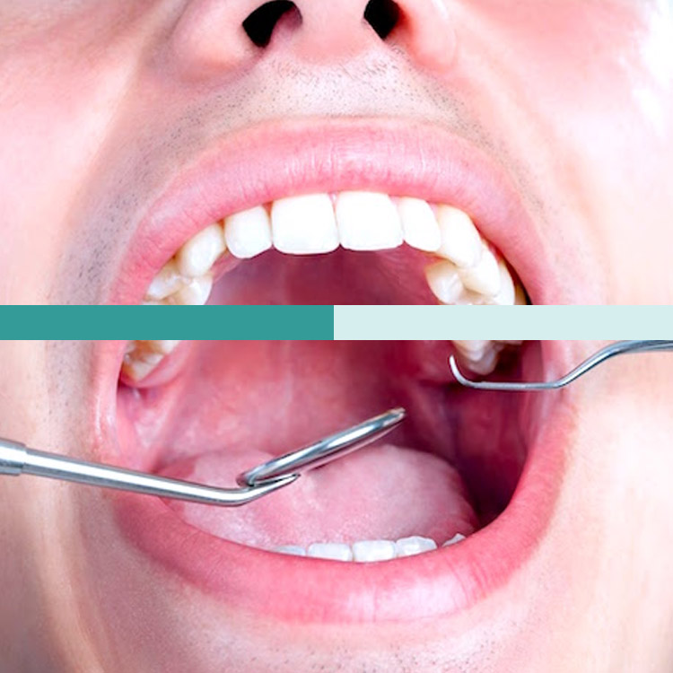 Clínica Dental Zaragoza - Clínica Dental AG